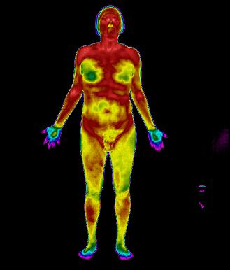 Fibromialgia é doença, sim. | InfraRedMed