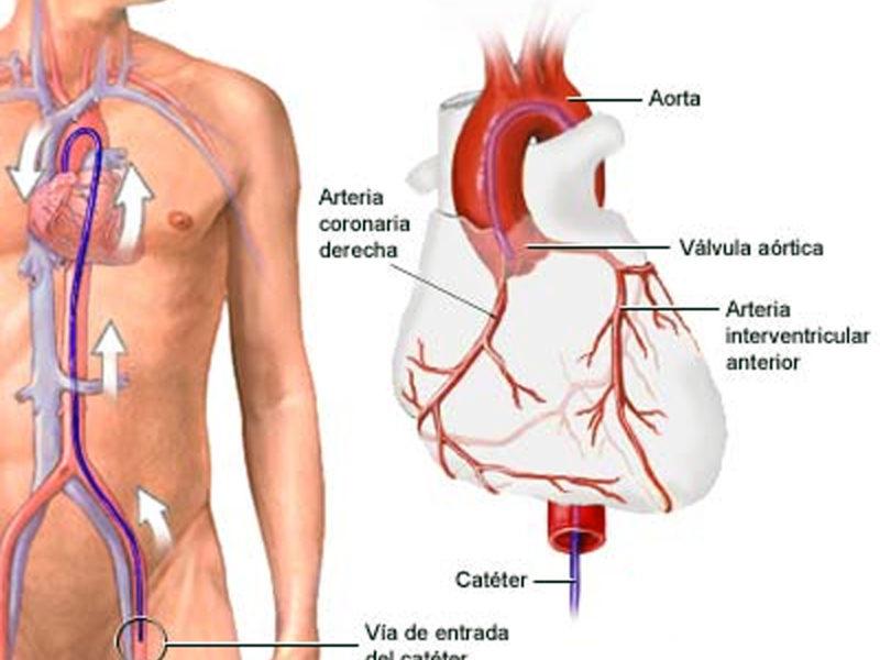 Termo-coronário-angiografia. | InfraRedMed