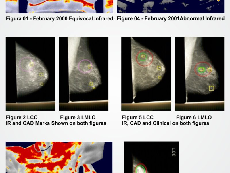 Termografia e Mamografia, entendendo as diferenças. | InfraRedMed