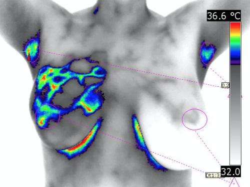 Termografia identifica predisposição ao câncer de mama | InfraRedMed