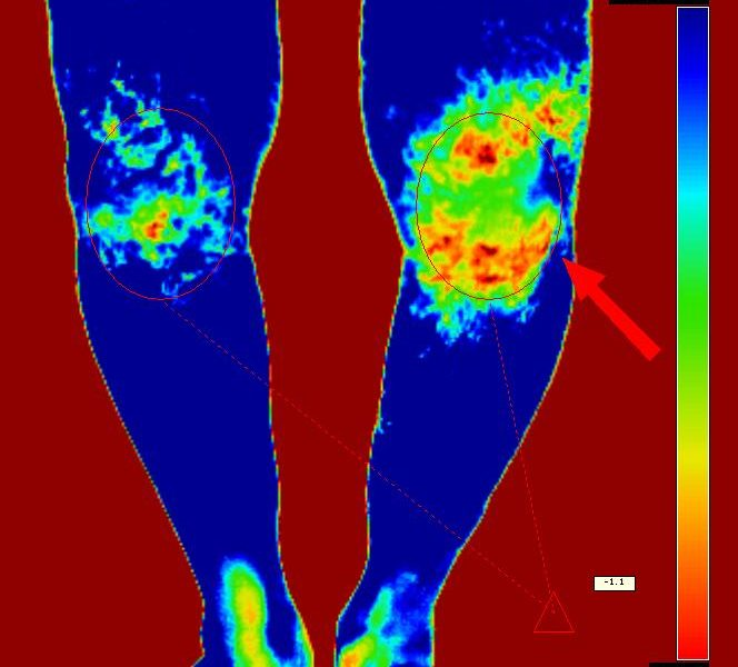 Termografia mede dano dos antiinflamatórios na cicatrização. | InfraRedMed
