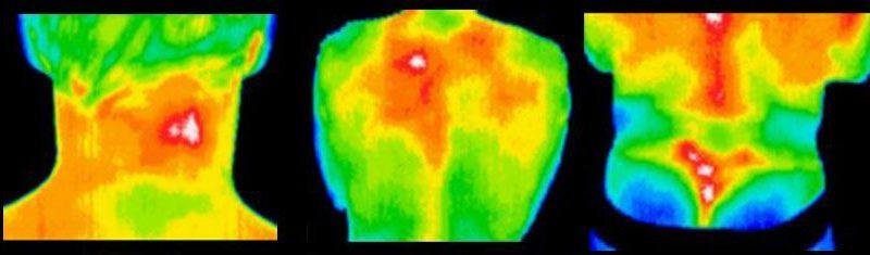 A termografia usada no tratamento da Dor Miofascial | InfraRedMed